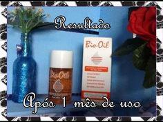 Bio Oil - Resultado após 1 mês de uso | Luciana de Queiróz
