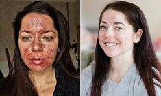 Personal trainer shares her striking before and after acne pictures - Acne Treatment Before And After Acne, Accutane Before And After, Tretinoin Before And After, Back Acne Treatment, Cystic Acne Treatment, Natural Acne Treatment, Portsmouth, Differin Gel, Photos Tumblr