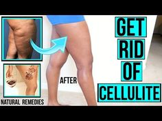 Moreover, you can also establish cellulite if you don't work out sufficient or if you don't watch what you consume very carefully. Food abundant in carbohydrates, fats, and low-fiber food boost fat storage in the body and causes cellulite. Cellulite Scrub, Cellulite Remedies, Reduce Cellulite, Anti Cellulite, Cellulite Cream, Cellulite Workout, Fat Workout, Spin For Perfect Skin, Lose Arm Fat