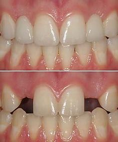 Congenitally Missing Lateral Incisors - Treatment with ...