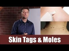 In this video, Dr. Berg explains what causes skin tags and moles.  https://www.drberg.com/blog/most-recent/what-causes-skin-tags-and-moles
