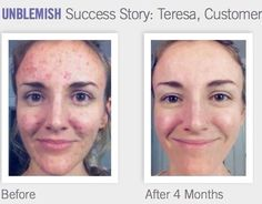 Rodan + Fields: Unblemish before & after results. Have stubborn acne? give our dermatology grade products a try. Clinically proven & have a 60 day money back guarantee if not satisfied. Message me for 10% off & free shipping details! glamskin14@gmail.com