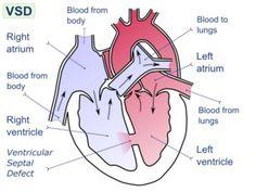 IASD system for heart failure, treatment of heart failure. Types of heart failure Heart Disease Treatment, Heart Failure Treatment, Decompression Sickness, Ventricular Septal Defect, Rn School, Myocardial Infarction, Nursing Tips, Health Articles, Kids Health