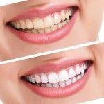 Herkes Diş Beyazlatma Yaptırabilir mi?
