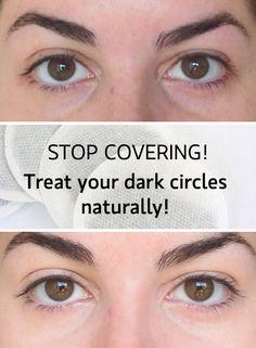 dark circles diy naturally