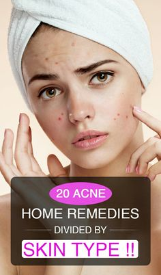 Know 20 Acne Home Remedies Divided by Skin Type !!