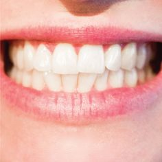 Recent #STUDY shows that good #oralhealth helps older adults prevent physical and mental disabilities! #dentistry