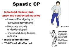 What is Spastic Diplegia Cerebral Palsy? More