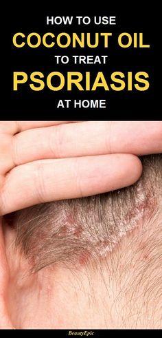 kokosolja mot psoriasis