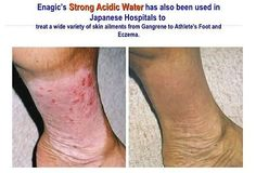 Kangen Water is great for eczema, psoriasis, and many other skin conditions. Learn about the healing benefits of alkaline rich Kangen Water in the prevention, treatment, and cure of many health maladies. Gout Remedies, Toenail Fungus Remedies, Snoring Remedies, Kangen Water Benefits, Alkaline Water Benefits, Kangen Water Machine, Water Ionizer, How To Treat Eczema, Healthy Water