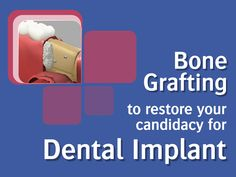 Bone Grafting to restore your candidacy for Dental Implant: In order to qualify for dental implant surgery, patients must have sufficient jawbone density. A bone graft involves transplanting healthy bone tissue to restore strength and density to your jaw. Dr. Allen, Dr. Mraule and team perform bone grafting procedures. Please contact our office to schedule a consultation: 831-884-5069 / 831-757-3021