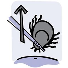 Illustration of a tick being grasped by tweezers and lifted from the skin's surface.
