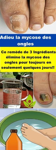 Nail Fungus & This Natural Three-Ingredient! Combat Nail Fungus & This Natural Three-Ingredient! Combat Nail Fungus & This Natural Three-Ingredient! Natural Cures, Natural Health, Health Remedies, Home Remedies, Alcohol Benefits, Three Ingredient Recipes, Toenail Fungus Remedies, Fungal Infection, Healthy Exercise