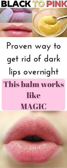 This homemade lip balm works like a magic to get rid of dark layer from your lips. Just use it for few day and your lips will look pink naturally
