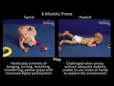 Watch this side by side development video series showing babies at 4 and 6 months old to compare their motor movements and see what typical and atypical motor development looks like. 6 Month Old Development, Child Development Stages, Child Development Activities, Physical Development, Therapy Activities, Pediatric Physical Therapy, Physical Education Games, Occupational Therapy, 6 Month Baby Activities