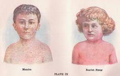 Measles Outbreak: A Public Price for the Preeminence of Autonomy? - http://sjs.li/1CxIUMX