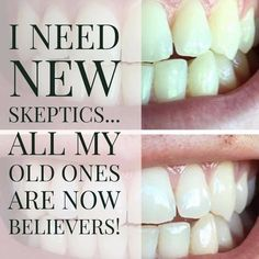 Try my Whitening Toothpaste, Easy to use, just brush your teeth three times a day! That's IT!!