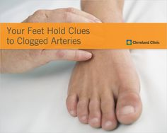 Can the pulses in your feet signal heart disease risk? Peripheral Artery Disease, Cardiovascular Disease, Heart Disease Symptoms, Clogged Arteries, Normal Heart, Heart Muscle, Cleveland Clinic, Very Tired, Muscle Tissue