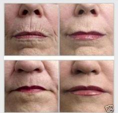 Natural Wrinkle Remedy #Beauty #Trusper #Tip