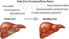 Image result for liver disease treatment hd image