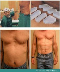 6-pack implants