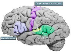 AFASIA. La afasia es un trastorno del lenguaje debido a una lesión cerebral de las zonas del cerebro responsables del lenguaje: Para la mayoría de las personas estas zonas se encuentran en el hemis…