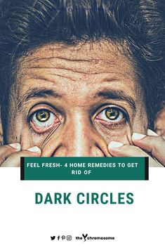 Dark circles can be quite annoying to deal with. However, with these simple home remedies you can get rid of these dark circles easily Lighten Skin Tone, Reduce Dark Circles, Tired Eyes, Skin Problems, Simple House, Home Remedies, Rid, How To Get, Skincare Routine