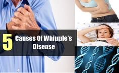 Whipple's disease is a disease caused due to bacterial infection. It mostly affects the gastrointestinal system. In this disease normal digestion is disturbed as the ...