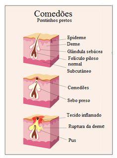 """Os cravos (ou comedões abertos) são pequenas espinhas ou erupções cutâneas que aparecem na pele como resultado da obstrução dos folículos pilosos. Estas lesões cutâneas são chamadas """"cravos"""" porque a superfície é escura ou preta."""