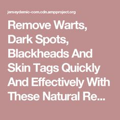 Remove Warts, Dark Spots, Blackheads And Skin Tags Quickly And Effectively With These Natural Remedies - Jersey Demic