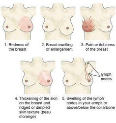 Signs and Symptoms of Breast Cancer  Please SHARE it may save someone's life.  http://ozhealthreviews.com/