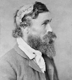 This is Robert McGee. I don't know if we should call him a lucky man or not. As a young boy he was scalped by an indian chief called Little Turtle. He survived the horrible experience.  As a son of emigrants Robert McGee traveled west i 1864, together with his parents, to seek a better life. ... http://picturahistoria.com/2013/12/robert-mcgee-scalped-sioux-chief-little-turtle-1864/