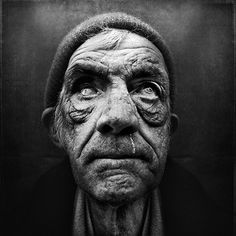 This is a great image of a homeless person who is living on the streets. Being homeless can cause things like diseases or even death because they are not being provided with the right nutrients as they should.