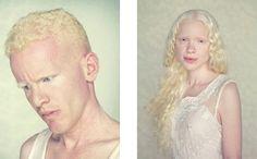 © Gustavo Lacerda, Albinos, l'intervista.