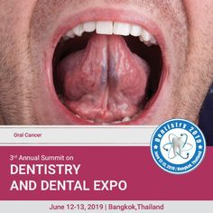 Dentistry 2020 is on Mar 4 2020 at Auburn Medical Conferences, Risk Factor, Oral Cancer, Head And Neck, Dental Care, Dentistry, Health Care, Alcohol, Lips