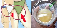 Découvrez 3 astuces naturelles qui vous permettent de blanchir la peau foncée des zones intimes. Testez et vous serez surprises par les résultats!