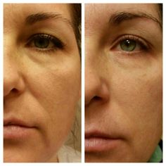 After one month of using Luminesce from Jeunesse Global. This is my personal picture. These products are awesome! www.muriellewarman.jeunesseglobal.com