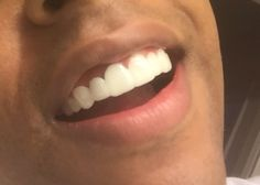 Press On Veneers review from real client. Amazing Results