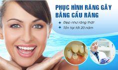 Làm cầu răng sứ CT 5 chiều thay thế răng mất