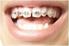 12 Best Orthodontist Images On Pinterest In 2018 Braces