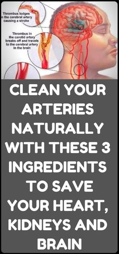 Healthy Man How to clean out the plaque in the arteries – 3 ingredients mix Healthy Weight, Healthy Tips, How To Stay Healthy, Healthy Man, Healthy Heart, Healthy Food, House Cleaning Tips, Cleaning Hacks, Wellness Tips
