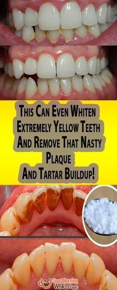 This Can Even Whiten Extremely Yellow Teeth And Remove That Nasty Plaque And Tartar Buildup!