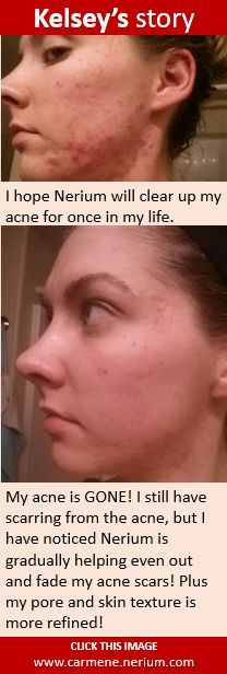 """Nerium Before and After """"Texture"""". For more information, visit www.nerium.com/thenew20 or email ncmillican@gmail.com Like on Facebook: www.facebook.com/youarethenew20 #thenew20 #healthy #antiaging #acne"""