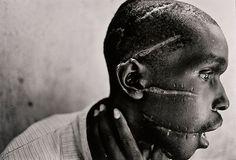 Rwandan Genocide (James Nachtwey)  Perspective.