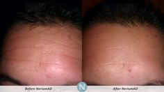 This is an amazing product that I earn for free! It has changed my skin completely. 30 day money back guarantee so what do you have to loose!!! http://nerium.com/grace14/