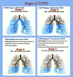 Stages of COPD Chart.