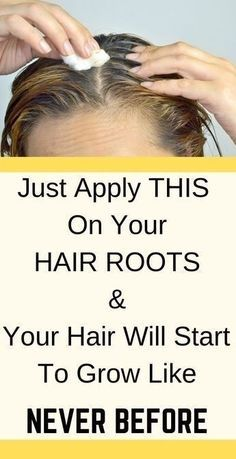 Hair Growth Oil, Natural Hair Growth, Natural Hair Styles, Hair Remedies For Growth, Regrow Hair, Grow Long Hair, Hair Regrowth, Hair Loss Treatment, Hair Treatments