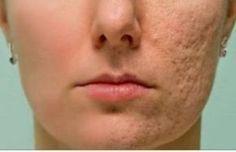 Elimina las arrugas, cicatrices y manchas de tu piel con este tratamiento natural