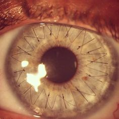 • Sutures After Retinal Transplant •