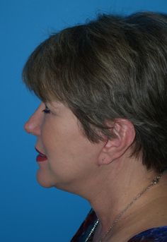 Our Patient Wanted A More Refreshed Look From Dr Kyle Choe And Had Facelift In Virginia Beach Va Clinic